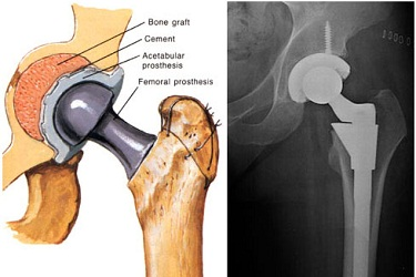 Revision Hip Replacement India, Best Hospital for Revision Hip Replacement Surgery in India, Cost of Revision Hip Surgery in India, Best Hip Replacement Surgeon in Gurgaon India.